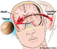 baseball concussion