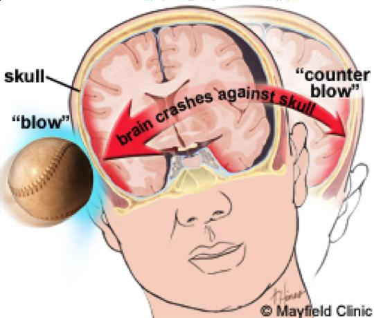 Mild Concussion After Car Accident